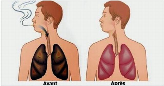 كيف تنظف رئتيك من التدخين