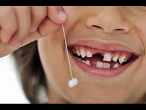 ما هو تفسير سقوط الاسنان في المنام مختلفون