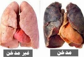 ما مضار التدخين