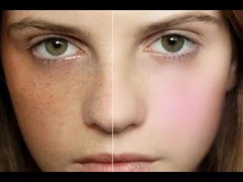 كيف اعالج النمش في الوجه
