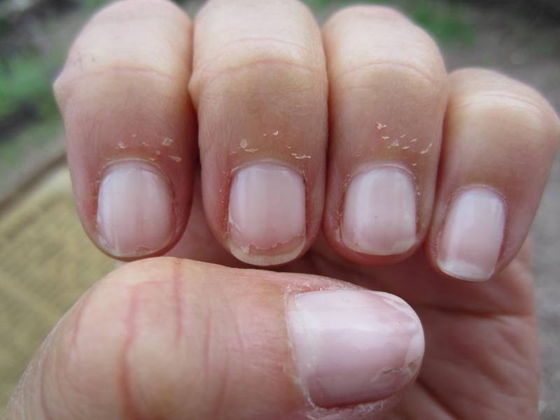كيف اعالج الجلد الميت حول الاظافر