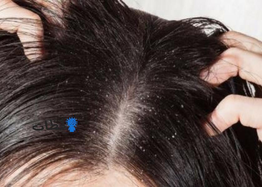 علاج القشرة للشعر – اقل الامكانيات تعالج قشرة الشعر